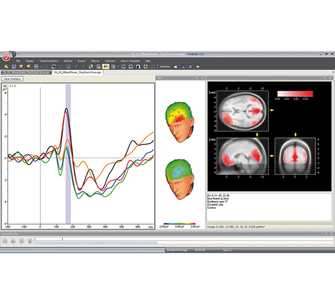BrainVision Analyzer 2